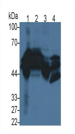 Monoclonal Antibody to Cytokeratin 17 (CK17)