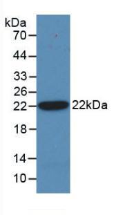 Monoclonal Antibody to Hedgehog Homolog, Sonic (SHH)