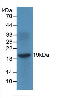 Monoclonal Antibody to Monokine Induced By Interferon Gamma (MIg)
