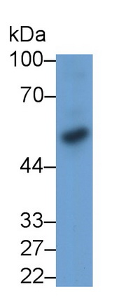 Monoclonal Antibody to Bone Morphogenetic Protein 3 (BMP3)