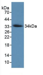 Monoclonal Antibody to Collagen Type VII (COL7)