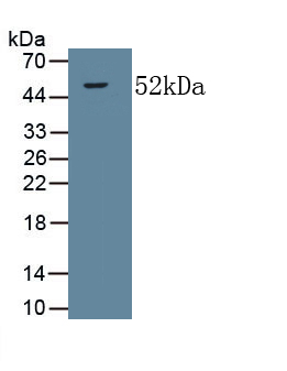 Monoclonal Antibody to Collagen Type V Alpha 2 (COL5a2)