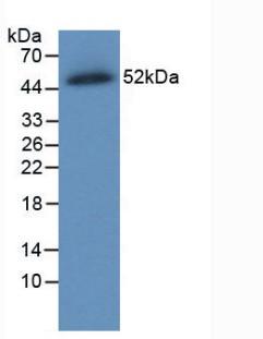 Monoclonal Antibody to Ferroportin (FPN)