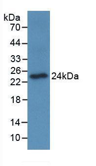 Monoclonal Antibody to Osteoclast Associated Receptor (OSCAR)