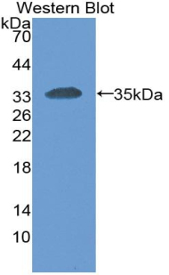 Monoclonal Antibody to Carcinoembryonic Antigen Related Cell Adhesion Molecule 1 (CEACAM1)