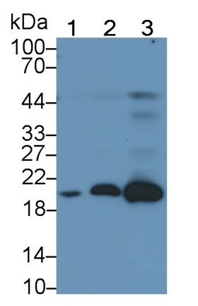 Monoclonal Antibody to Ferritin, Light Polypeptide (FTL)