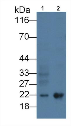 Monoclonal Antibody to Ferritin, Heavy Polypeptide (FTH)