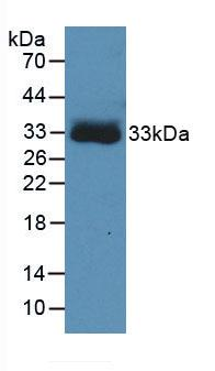 Monoclonal Antibody to Hemoglobin Beta (HBb)