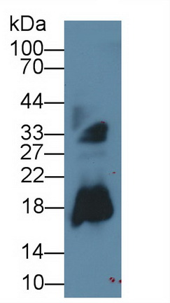 Monoclonal Antibody to Ribonuclease A2 (RNASE2)