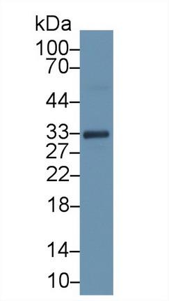Monoclonal Antibody to Troponin T Type 2, Cardiac (TNNT2)
