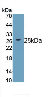 Monoclonal Antibody to Receptor Interacting Serine Threonine Kinase 3 (RIPK3)