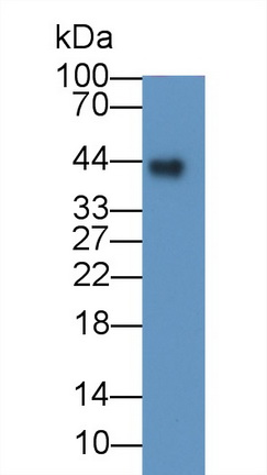 Monoclonal Antibody to Folate Receptor 1, Adult (FOLR1)