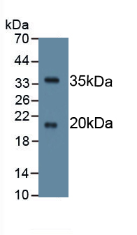 Monoclonal Antibody to Serine Peptidase Inhibitor Kazal Type 5 (SPINK5)