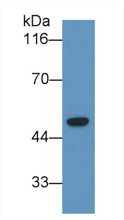 Monoclonal Antibody to Lecithin Cholesterol Acyltransferase (LCAT)
