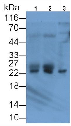 Monoclonal Antibody to Parkinson Disease Protein 7 (PARK7)