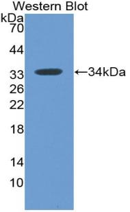 Monoclonal Antibody to Myxovirus Resistance 1 (MX1)