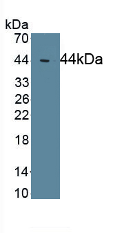 Monoclonal Antibody to Complement Component 4d (C4d)