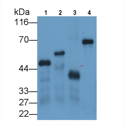 Monoclonal Antibody to Glutathione S Transferase (GST)