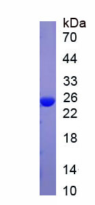 Native C Reactive Protein (CRP)