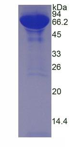 Native Albumin (ALB)