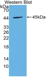 Polyclonal Antibody to Brain Derived Neurotrophic Factor (BDNF)