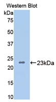 Polyclonal Antibody to Bone Morphogenetic Protein 4 (BMP4)