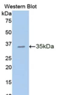 Polyclonal Antibody to E-cadherin