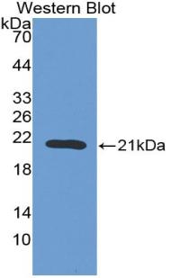 Polyclonal Antibody to Erythropoietin (EPO)
