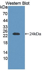 Polyclonal Antibody to Fibroblast Growth Factor 1, Acidic (FGF1)