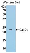 Polyclonal Antibody to Interferon Alpha (IFNa)