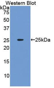 Polyclonal Antibody to Interferon Alpha (IFNa)