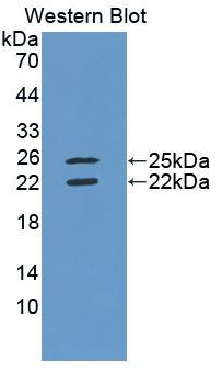 Polyclonal Antibody to Interferon Gamma (IFNg)