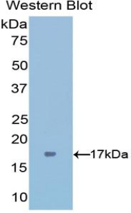 Polyclonal Antibody to Interferon Gamma (IFNg)