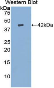 Polyclonal Antibody to Insulin Like Growth Factor 1 (IGF1)