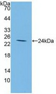 Polyclonal Antibody to Insulin Like Growth Factor Binding Protein 2 (IGFBP2)