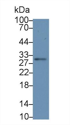 Polyclonal Antibody to Interleukin 12A (IL12A)