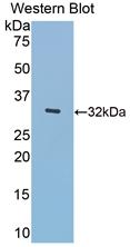 Polyclonal Antibody to Meningioma Expressed Antigen 5 (MGEA5)