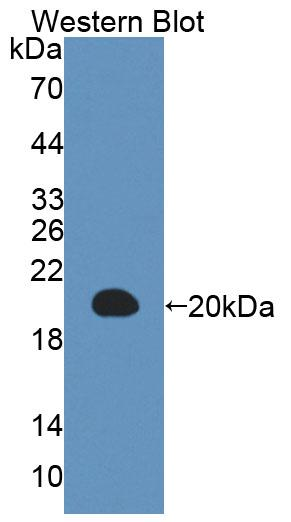 Polyclonal Antibody to Interleukin 3 (IL3)