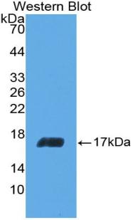 Polyclonal Antibody to Interleukin 5 (IL5)