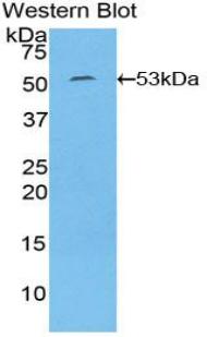Polyclonal Antibody to Interleukin 6 (IL6)