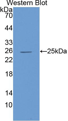 Polyclonal Antibody to Interleukin 6 (IL6)