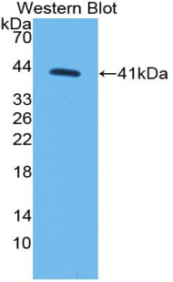 Polyclonal Antibody to Monocyte Chemotactic Protein 1 (MCP1)