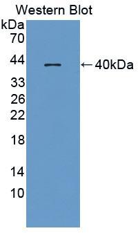 Polyclonal Antibody to Macrophage Inflammatory Protein 1 Beta (MIP1b)