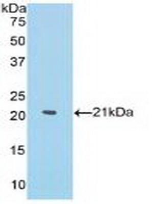 Polyclonal Antibody to Matrix Metalloproteinase 13 (MMP13)