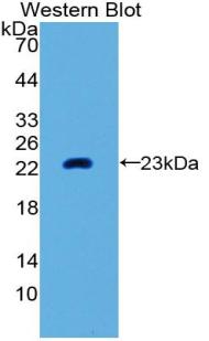 Polyclonal Antibody to Matrix Metalloproteinase 3 (MMP3)
