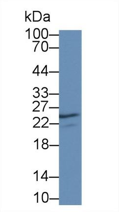 Polyclonal Antibody to Nerve Growth Factor (NGF)