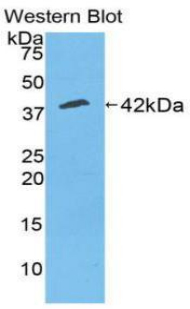 Polyclonal Antibody to Creatine Kinase, Muscle (CKM)