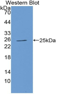 Polyclonal Antibody to Tissue Inhibitors Of Metalloproteinase 3 (TIMP3)