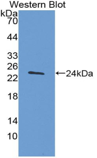 Polyclonal Antibody to Tissue Inhibitors Of Metalloproteinase 4 (TIMP4)
