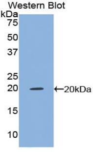 Polyclonal Antibody to Tumor Necrosis Factor Alpha (TNFa)
